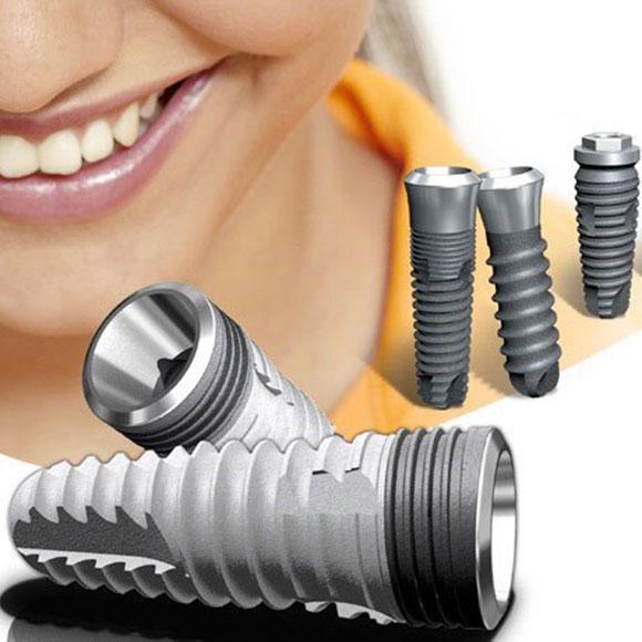 Implant prosthodontics